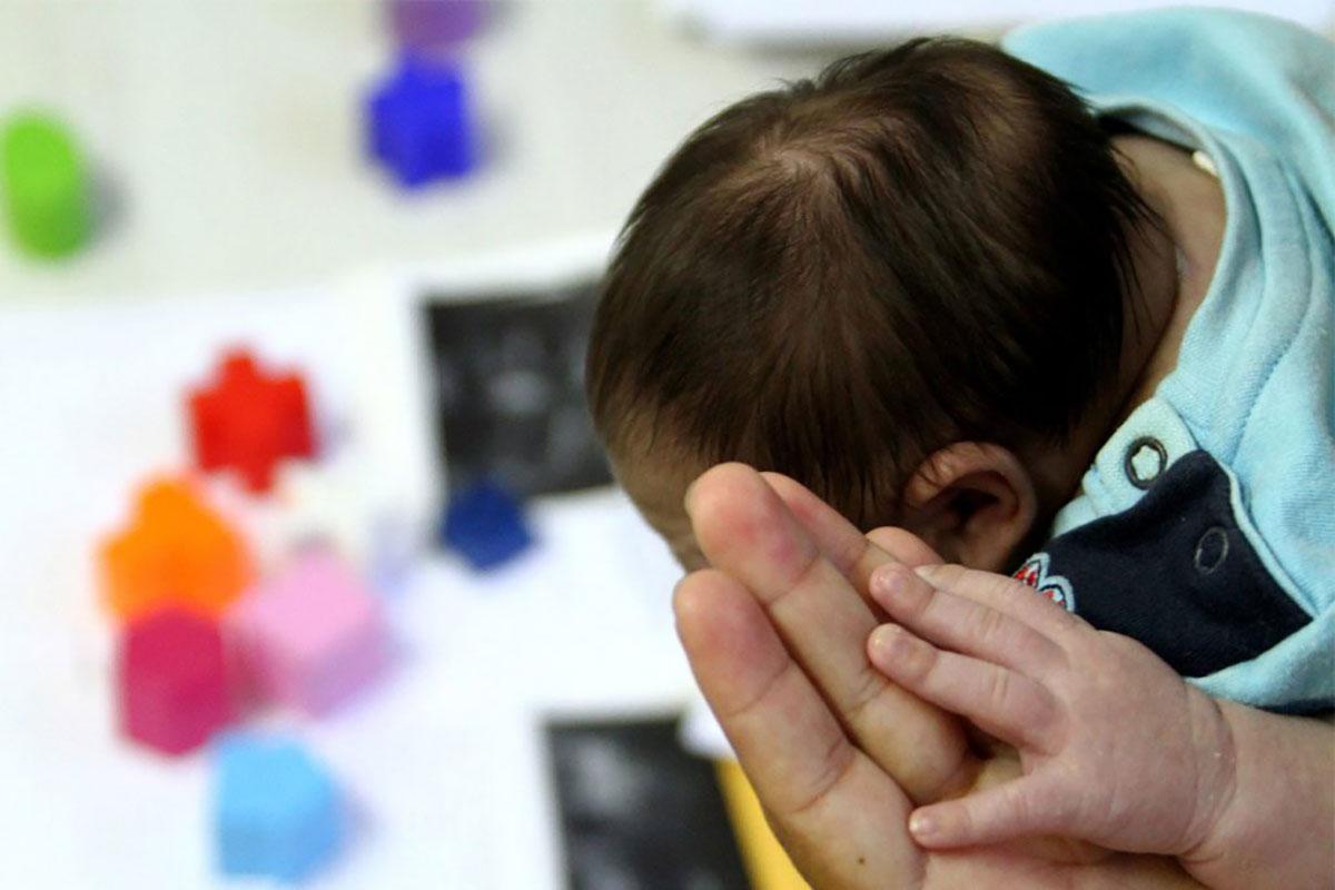 Fisioterapia na Microcefalia